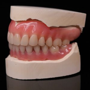 Removable Prosthetic